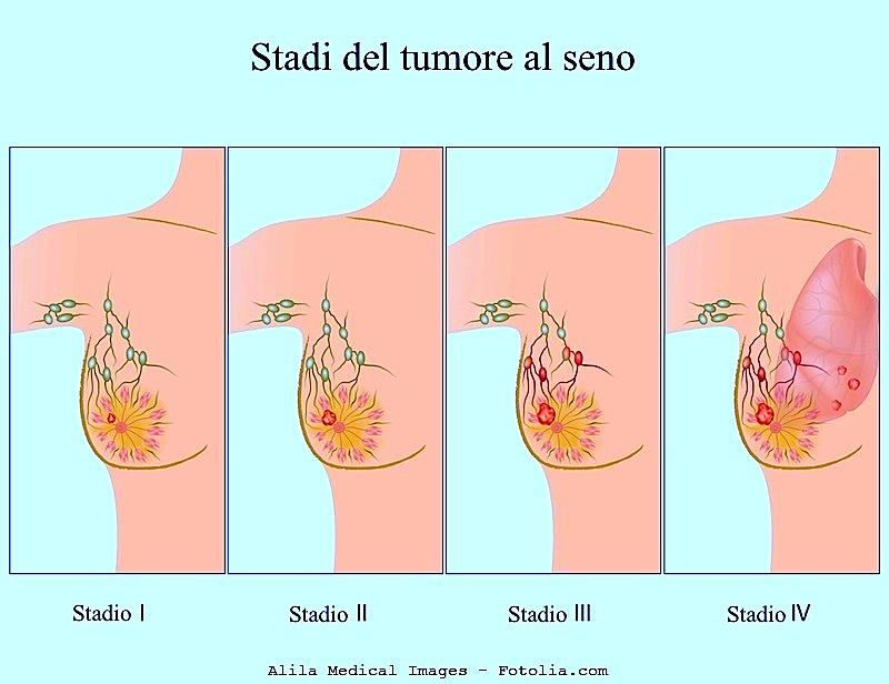 cancro linfonodi